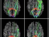 Nuevo mapa cerebro humano