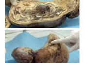 Pasó años embarazada tuvo bebé piedra