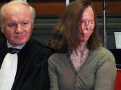 (455) mujeres quemadas desfiguradas: machismo peor expresión