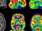 Informatica diagnostico alzheimer