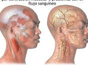 Cefaleas. Actitud diagnóstica