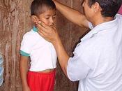 mala nutrición antes años tiene efectos irreversibles niños