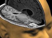 Sólidas pruebas partes encéfalo evolucionaron independientemente