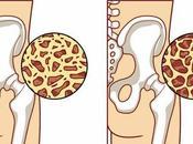¿Cómo prevenir osteoporosis?
