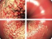 cáncer cuello útero estadísticas afección