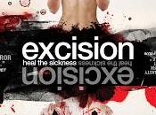 Excision review