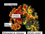 ¿Qué sabemos enfermedad Alzheimer?