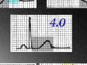 Caso clínico: ¡cuidado ECG!