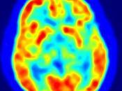 Estudio sobre actividad cerebral médiums