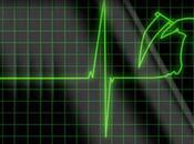 ¿Padeciendo enfermedad cardíaca murió Miss Perú Universo 2008, Karol Castillo? (Parte anestesiólogo cardiovascular explica.