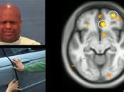 ¿Cómo funciona cerebro psicópata?