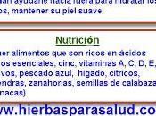 Remedios naturales para estrías