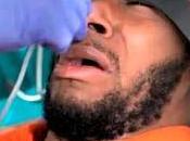 Rapero protesta contra alimentación forzada Guantánamo