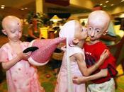 Progeria: niños ancianos esperanza