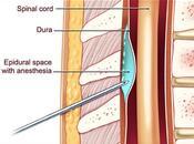 Espinal epidural tiene culo témporas