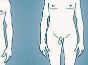 Síndrome Klinefelter síndrome
