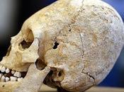 Cráneo alargado hallado francia 1500 años