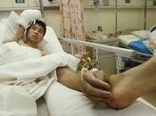 maravillas cirujanos chinos, ¿una mano pie?