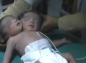 Nace India bebé cabezas