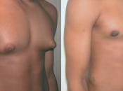 Hombres crecen pechos (tetas) tras tomar medicamento Risperdal