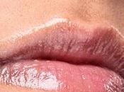 ¿Qué Herpes Labial?