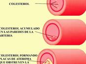 Colesterol: ¿bueno malo?