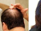 Tres vitaminas evitan caida cabello