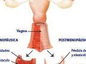 menopausia exacerba desencadena aparición problemas vaginales