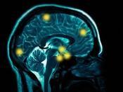 Accidentes Cerebrovasculares: Ictus Derrame Cerebral