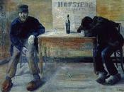 Alcoholismo Daño Cerebral: Síndrome Korsakoff