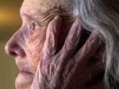 Alzheimer: Demencia frecuente Envejecimiento