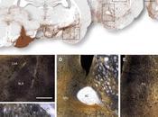 Trasplante neuronas derivadas células madre embrionarias restaura función motora enfermedad Parkinson