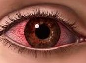 Tratamiento para conjuntivitis alérgica