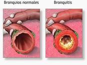 ¿Cuáles enfermedades comunes Sistema Respiratorio?