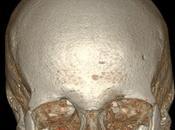 Imágenes cuerpo humano captadas tomografía computarizada