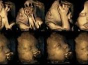 Imágenes Ultrasonido muestran cómo afecta fumar durante embarazo feto