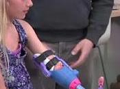 VIDEO: Niña Recibe Prótesis mano