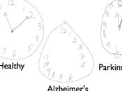 'test reloj' permite detección temprana alzhéimer párkinson