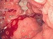 Investigan Vacuna contra Adenocarcinoma Gastrico