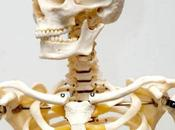 Dolor debajo costillas dificultades respiratorias están fuertemente asociado Costocondritis