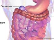 importancia tener flora intestinal sana, cuídala podrás acabar candidiasis crónica! Parte