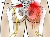 Terapias para Nervio Ciático