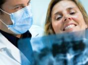 Requisitos cumplir para colocarte implante dental Málaga