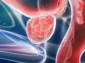 Desarrollan Modelo para Tratar Cancer Prostata