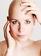 caída cabello durante quimioterapia Preguntas frecuentes
