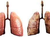 Riesgo desarrollar cáncer pulmón después dejar fumar