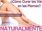 ¿Cómo curar várices piernas forma natural?