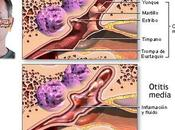 Cómo prevenir otitis verano