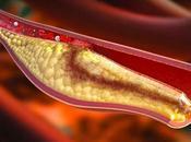 Hipercolesterolemia: Elevado nivel colesterol
