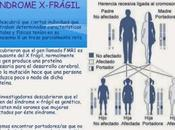 discapacidad intelectual hereditaria. síndrome frágil